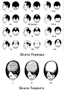 Alopecia_scales